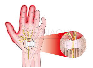 Carpal-Tunnel-Syndrome_86604217-watermark