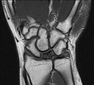 Kienbocks MRI scan