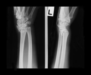 wrist-fracture_161889089-new