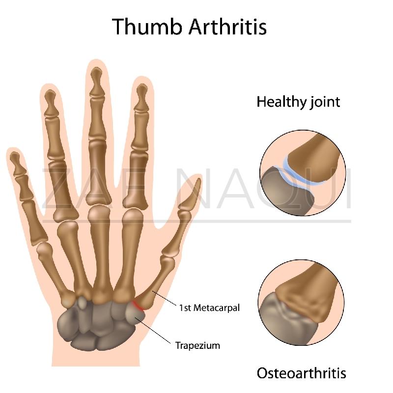 Zaf Naqui Base Of Thumb Osteoarthritis